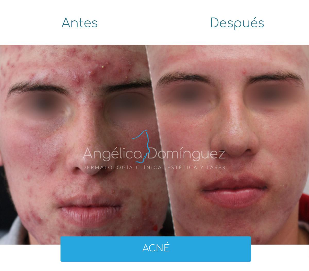Tratamiento para el Acné