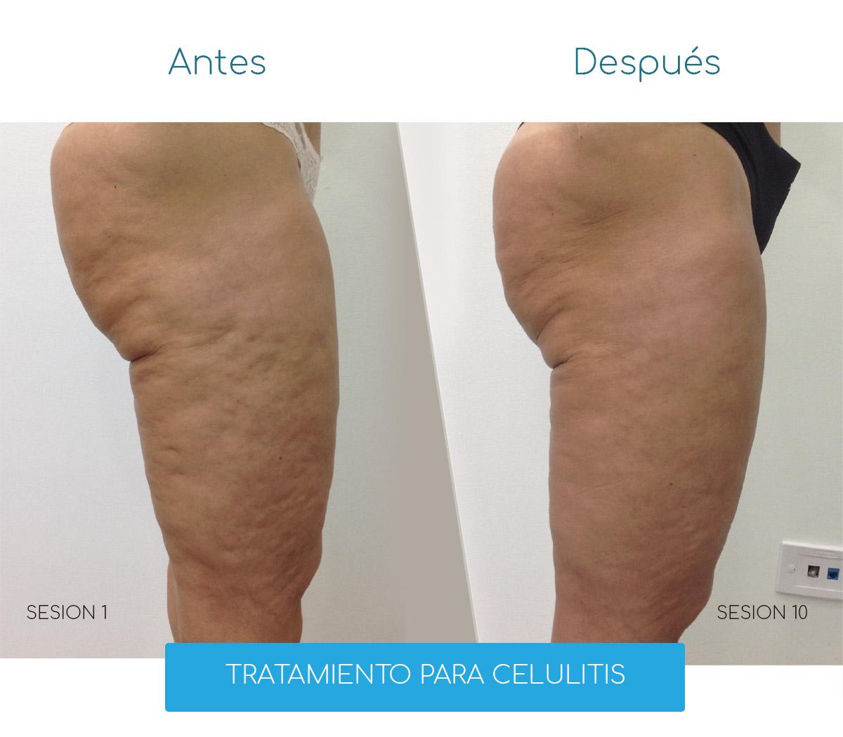 Tratamiento para Celulitis